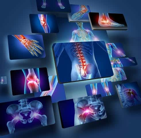 body joints pain points
